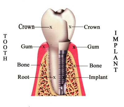 Dental Implants in Sayre